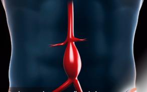 aneurisma-aorta-abdominal